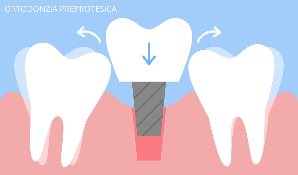 ortodonzia preprotesica